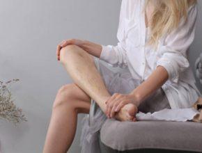 как лечить варикозное расширение вен